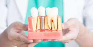 Dental Implants Have Become The Go To For Many