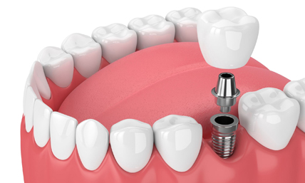 Dental Implants Have Become The Go To For Many People