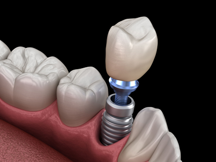 What Makes Someone A Candidate For Dental Implants