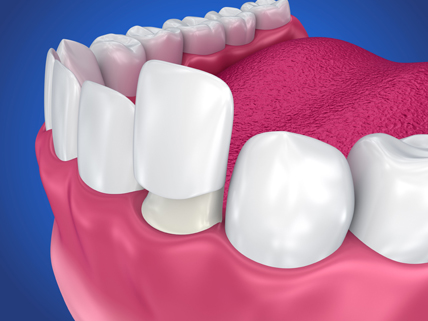Who Is A Candidate For Dental Crowns