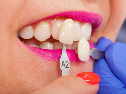 Who Is A Candidate For Porcelain Veneers