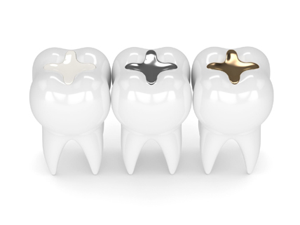 Who Is A Good Candidate For Tooth Colored Fillings