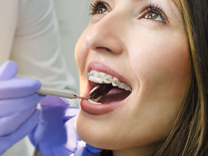 Why Is Orthodontic Treatment Needed
