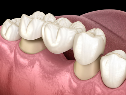 Why Might A Dental Bridge Be Needed