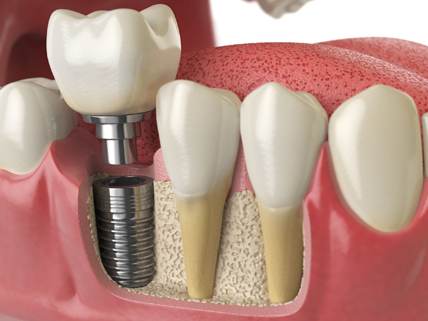 Why Would Dental Implants Restoration Be Needed