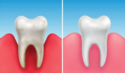 Why Would A Periodontal Scaling