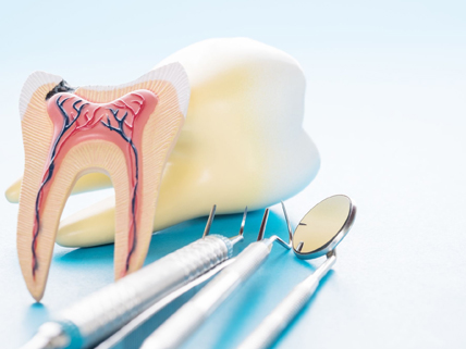 Why Would A Root Canal Be Needed