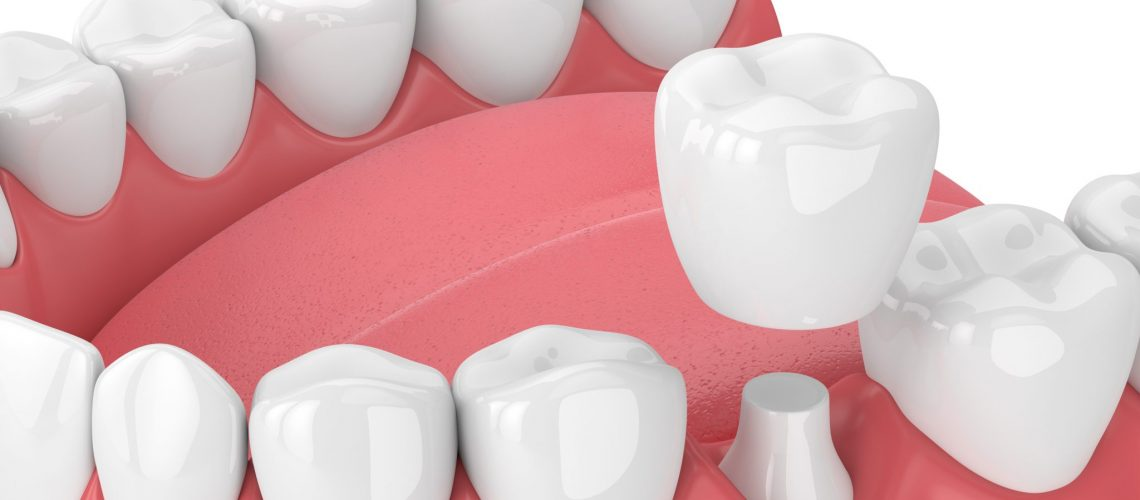 3d Render Of Jaw With Teeth And Dental Crown Restoration